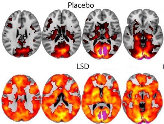 LSD placebo brain scan images